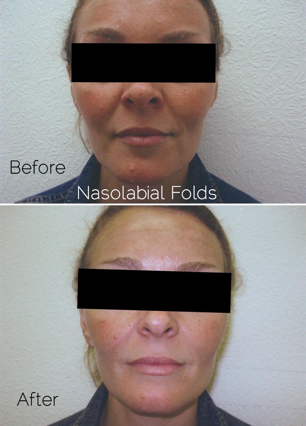 Nasolabial fold filler