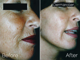 Genuine Dermaroller treatement before and after
