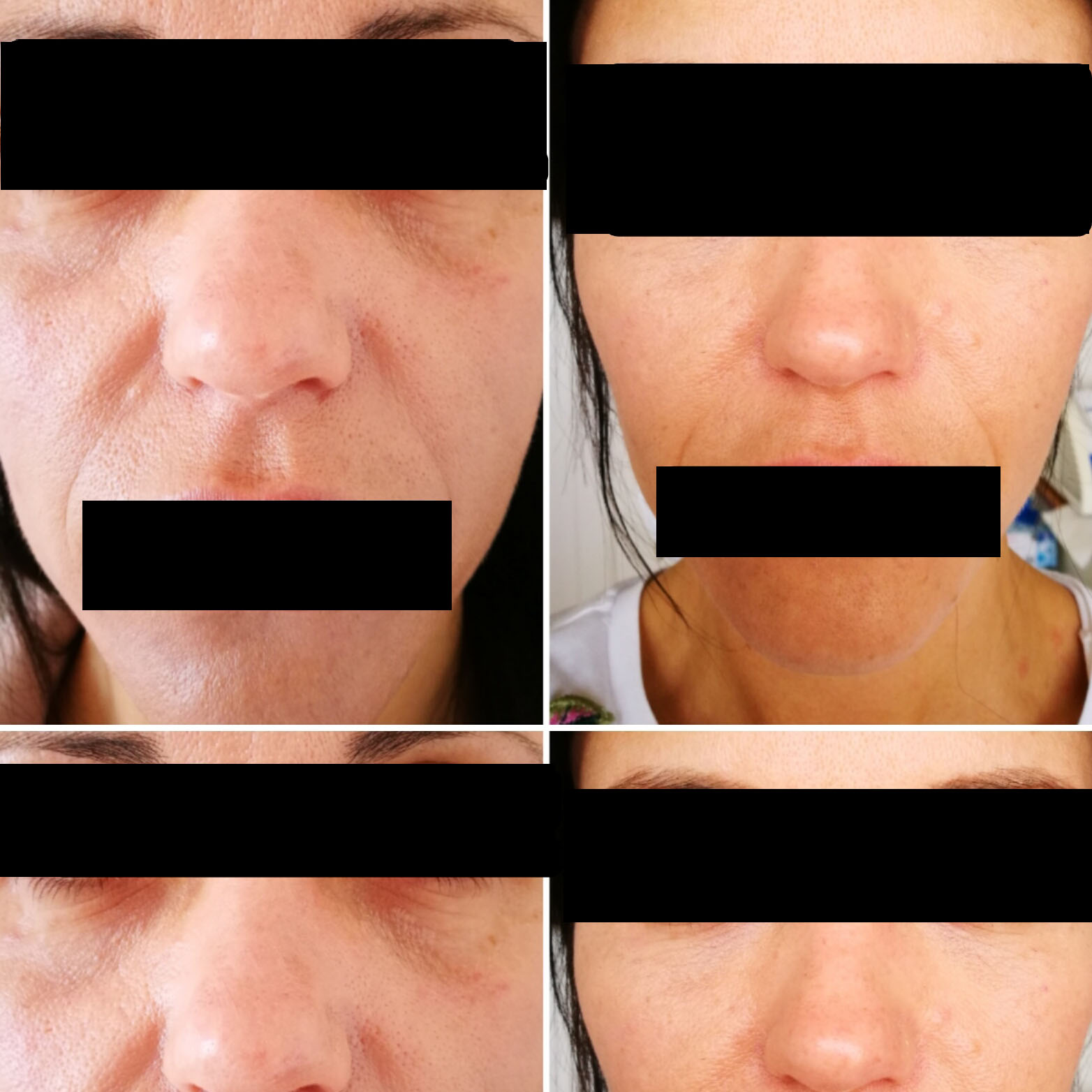 Nose to mouth wrinkle skin fillers