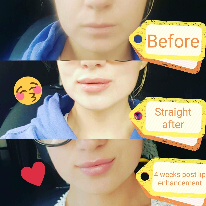 Filler lip treatment