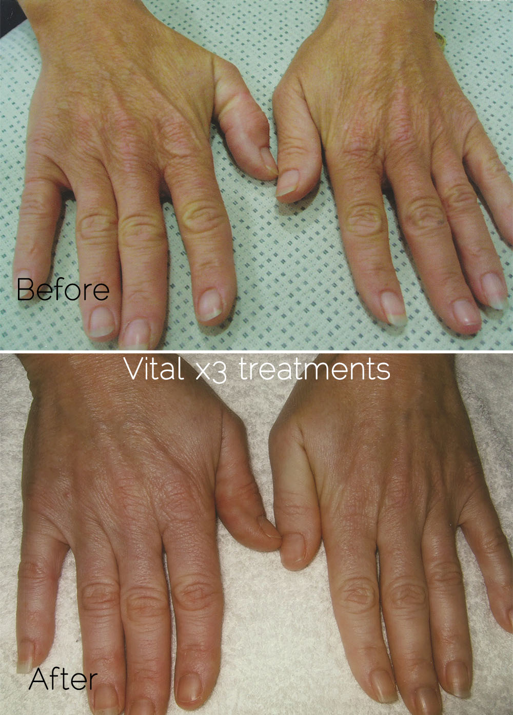 After Vital 3 treatment on hands