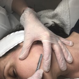 Poole Dermaplaning service